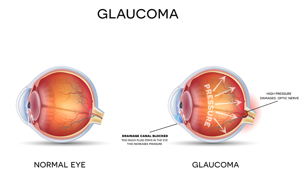 glaucoma diagnosis and treatment from your optometrist in lancaster