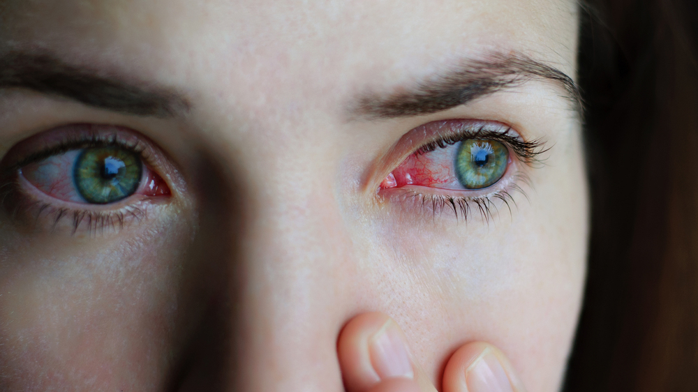 Woman with pink eye needs treatment in St. Johnsbury.
